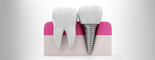 Dental Implants: Dentistry in Gravenhurst Has You Covered!