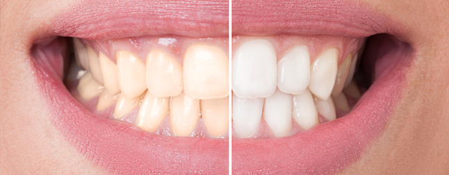 Will Teeth Whitening Improve My Smile?