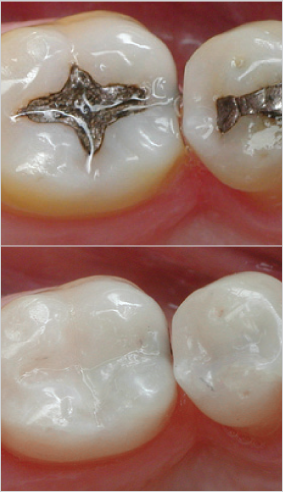 South Muskoka Dental Group teeth fillings